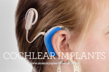 Cochlear Implants - Mommy Speech Therapy